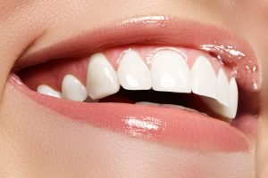 Gum and tissue grafting los angeles
